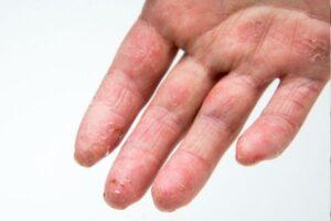 Dyshidrose, eczéma bulleux, cloques et petites vésicules